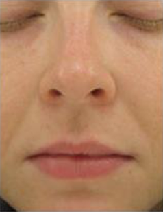 Perfecting Gloss-before