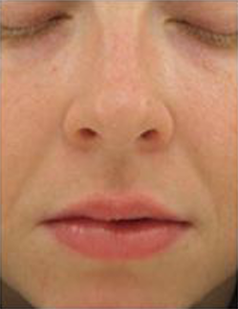 Perfecting_Gloss-after